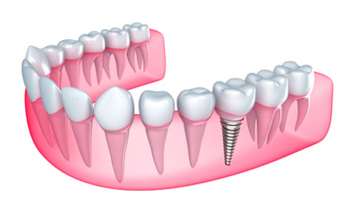 Why You Still Need to Come In for Dental Exams When You Have Dental Implants